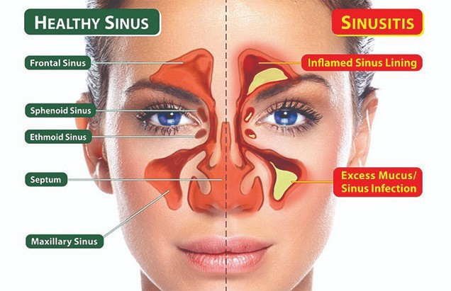 Is sinus infection contagious?