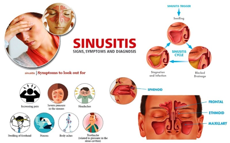 Symptoms, Causes, Diagnosis, Signs of Sinus Infections and How to Cure a Sinusitis
