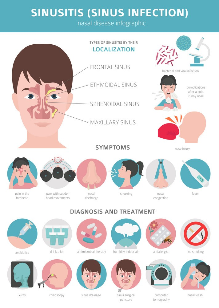 how to treat a sinus infection & symptoms of a sinus infect, sinusitis diagnosis
